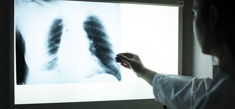 Solunum sistemi hastalıkları her yıl milyonlarca can alıyor