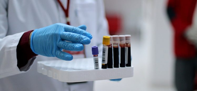 Dokuz Eylül Üniversitesinde 'immun plazma' tedavisi başladı